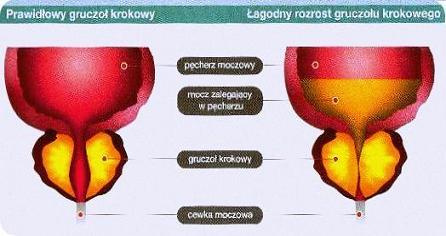 przerost prostaty w młodym wieku